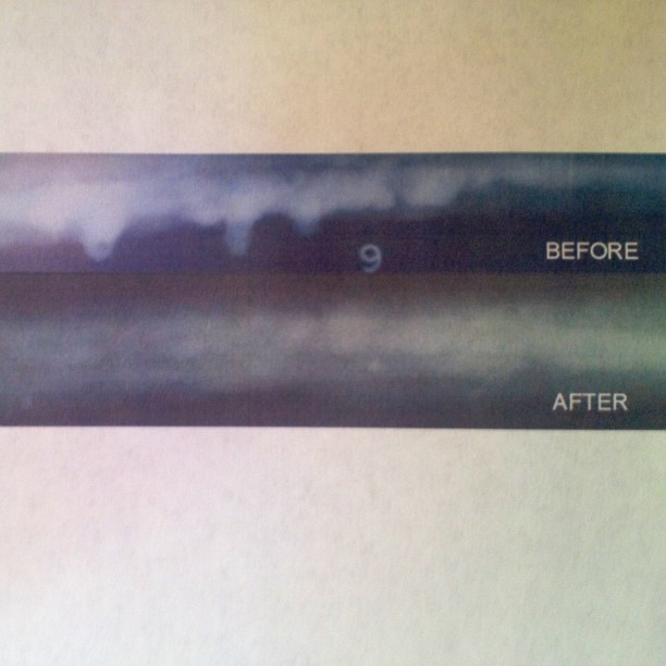 "X-rays of 10"" standard pipe before and after repairing another guy's piece of crap weld"